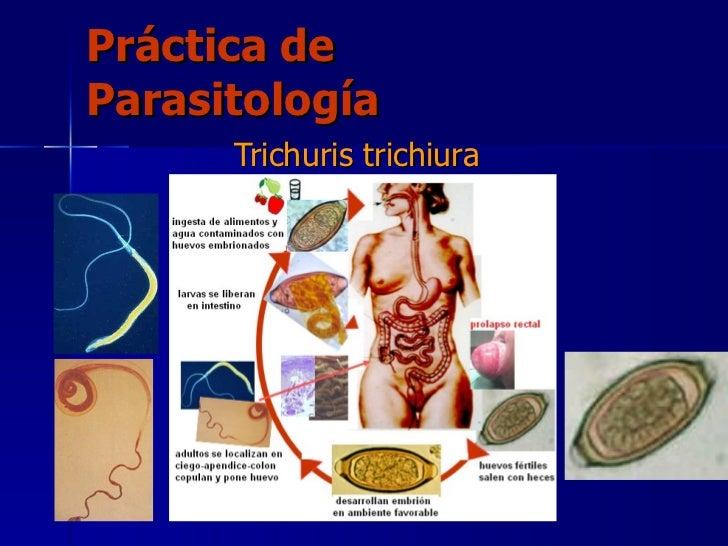 Práctica de Parasitología Trichuris trichiura