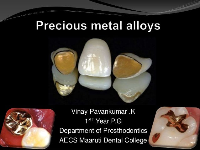 Precious Metal Alloys In Dentistry