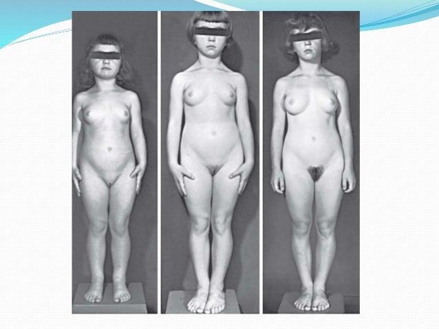Teenage period naked — img 12