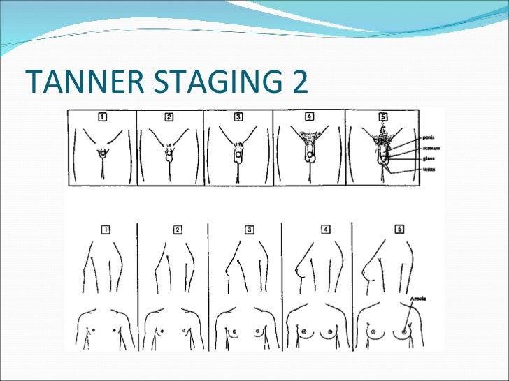 TANNER STAGING 2