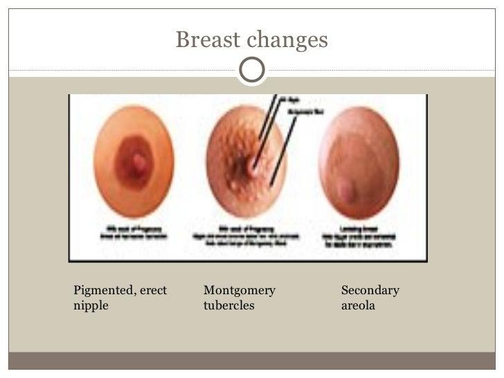 When Do Your Nipples Darken During Pregnancy 13