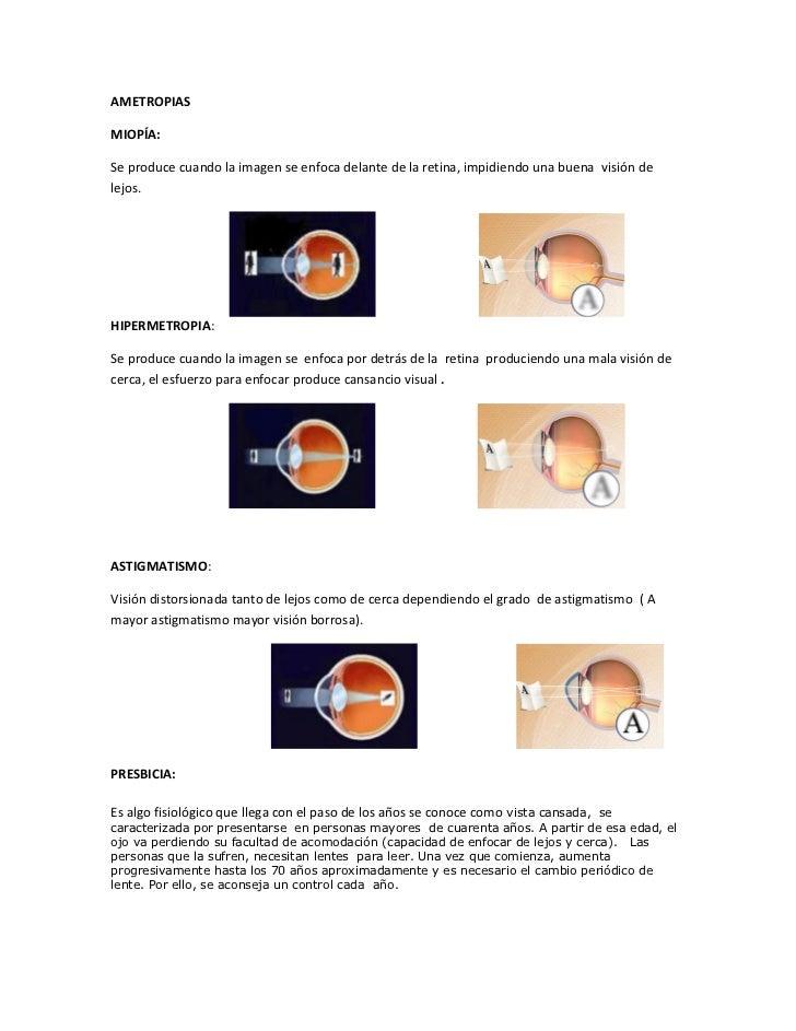 47f50a255f ametropias o defectos refractivos.