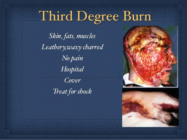 Prehospital burns | 638 x 479 jpeg 101kB