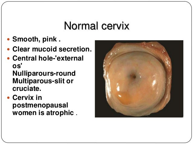 Premalignant And Malignant Conditions Of The Cervix