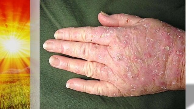 Premalignant Skin Conditions