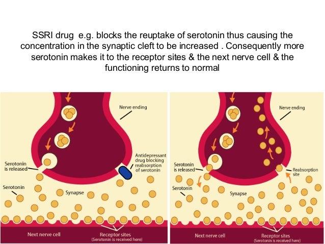 Does viagra delay ejaculation
