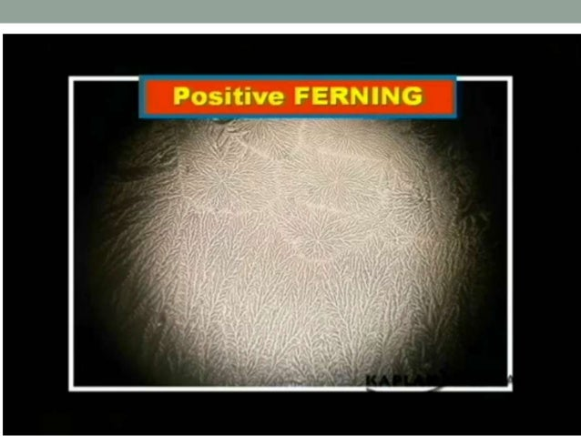 Foetal fibronectin assay • fFN present in cervical secretions <22 wks, >34 wks • Used for assessment of potential PTB • Po...