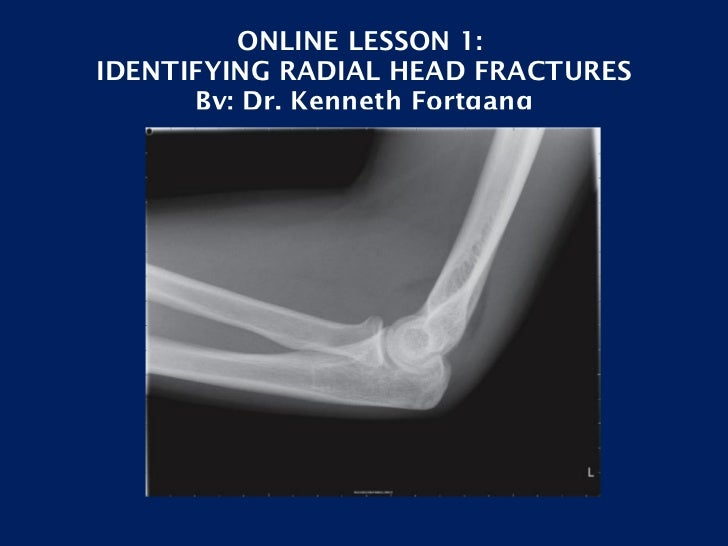 ONLINE LESSON 1:  IDENTIFYING RADIAL HEAD FRACTURES By: Dr. Kenneth Fortgang