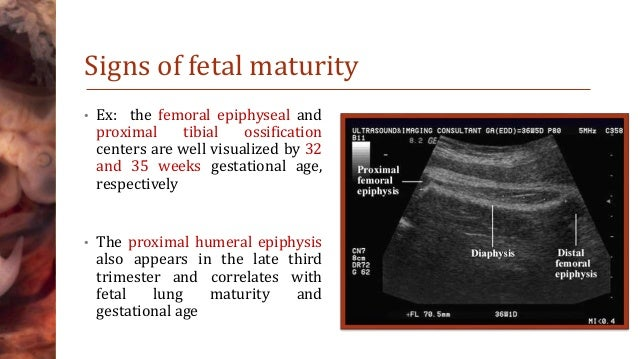 which statement about obstetric dating and assessment is correct