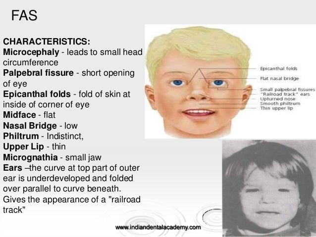 Prenatal growth & development /diploma orthodontic course ...