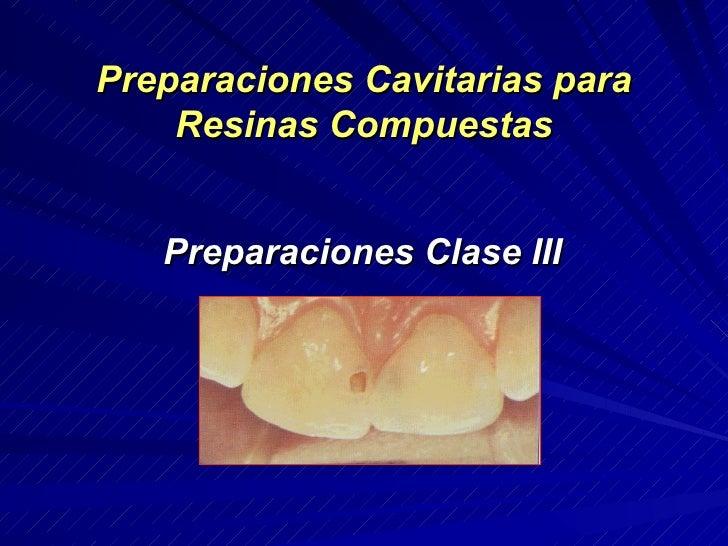 Preparaciones Cavitarias para    Resinas Compuestas   Preparaciones Clase III