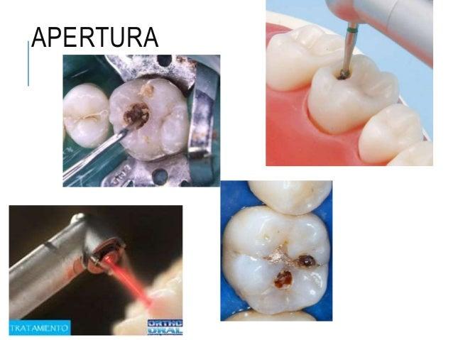 Preparación de cavidades operatoria