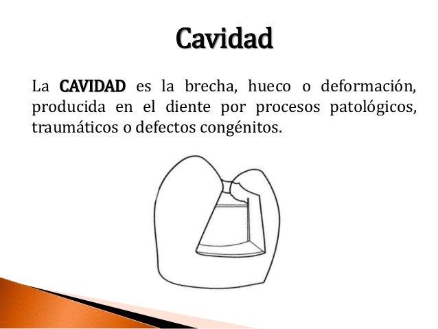 Preparacion de cavidades