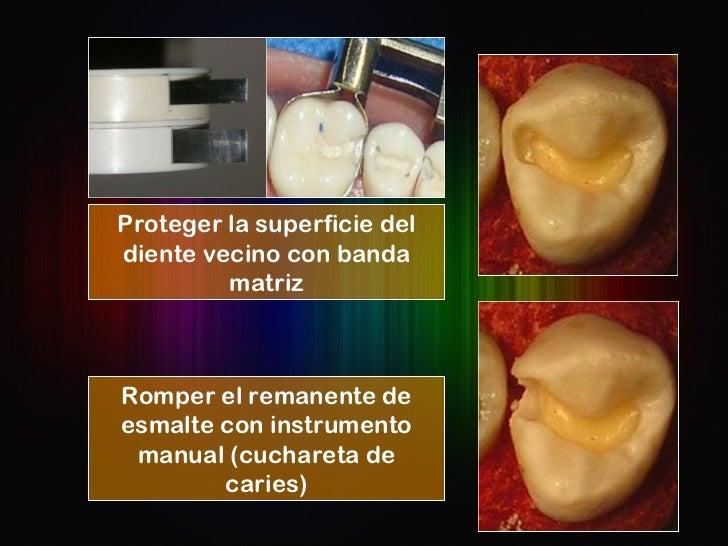 Romper el remanente de esmalte con instrumento manual (cuchareta de caries) Proteger la superficie del diente vecino con b...