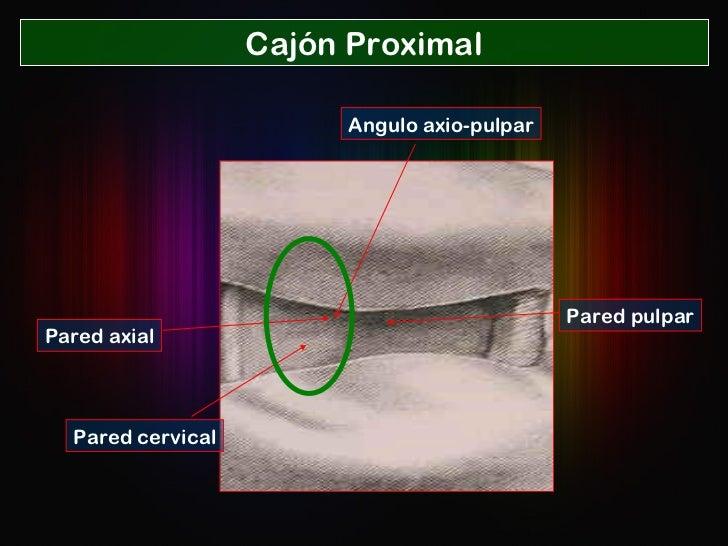 Cajón Proximal Pared cervical Pared axial Angulo axio-pulpar Pared pulpar