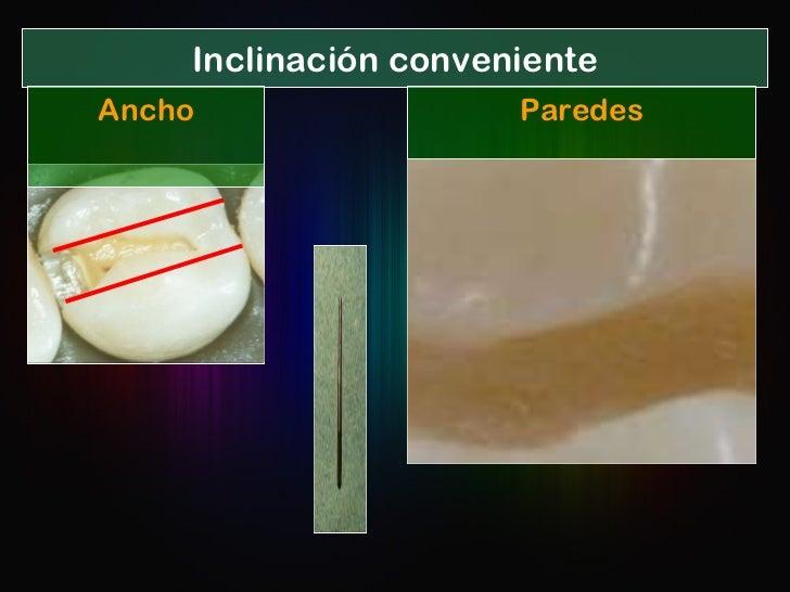Inclinación conveniente Paredes Ancho