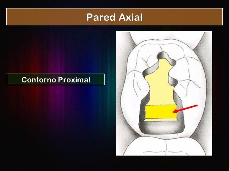 Pared Axial Contorno Proximal