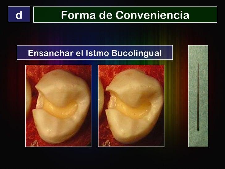 Forma de Conveniencia d Ensanchar el Istmo Bucolingual