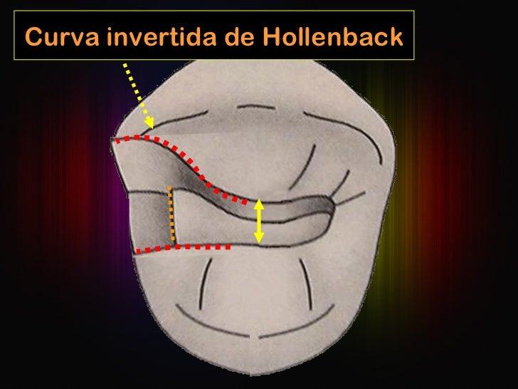 Curva invertida de Hollenback