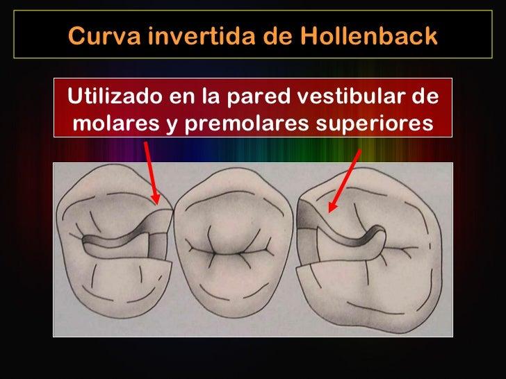 Curva invertida de Hollenback Utilizado en la pared vestibular de molares y premolares superiores