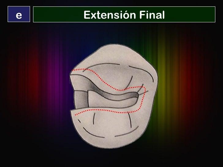 Extensión Final e