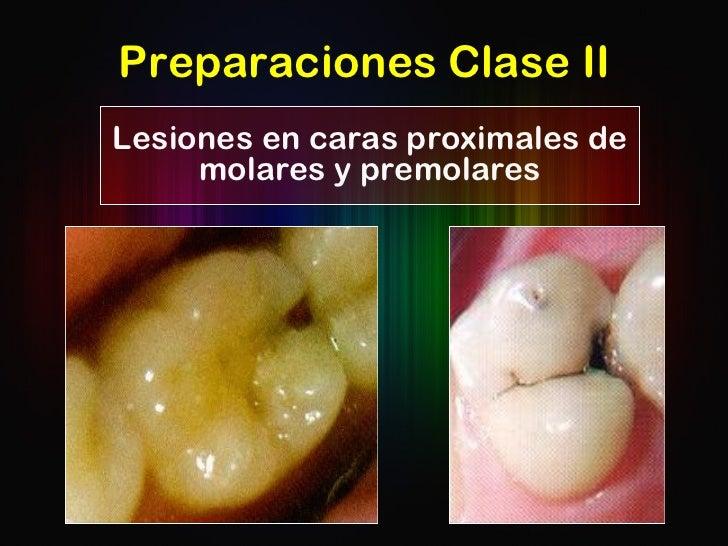 Preparaciones Clase II Lesiones en caras proximales de molares y premolares