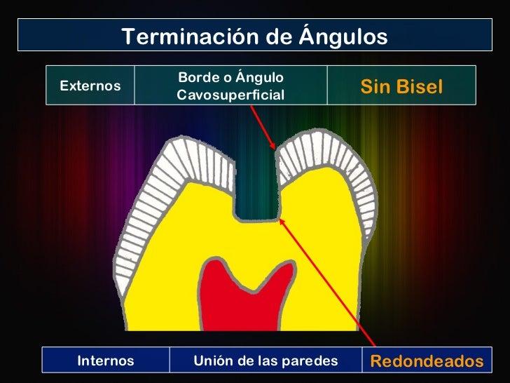 Terminación de Ángulos Internos Unión de las paredes Redondeados Externos Borde o Ángulo Cavosuperficial Sin Bisel