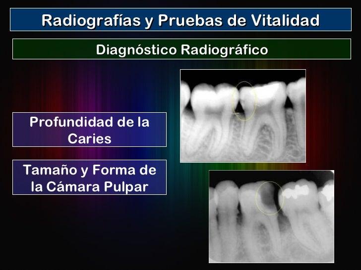 Radiografías y Pruebas de Vitalidad Diagnóstico Radiográfico Profundidad de la Caries Tamaño y Forma de la Cámara Pulpar