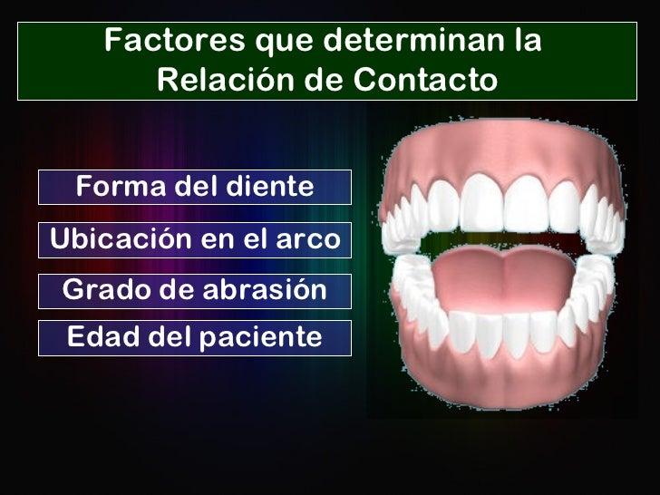 Forma del diente Ubicación en el arco Edad del paciente Grado de abrasión Factores que determinan la  Relación de Contacto