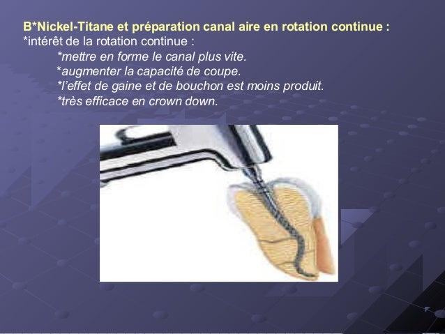 .*Principes généraux d'utilisation des instruments rotatifs en Ni-Ti : -respect de la vitesse de rotation préconisée par l...