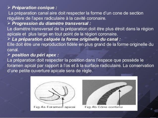  Préparation conique : La préparation canal aire doit respecter la forme d'un cone de section régulière de l'apex radicul...