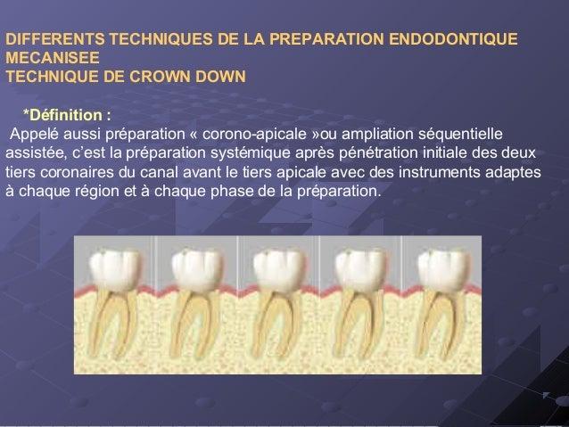 DIFFERENTS TECHNIQUES DE LA PREPARATION ENDODONTIQUE MECANISEE TECHNIQUE DE CROWN DOWN *Définition : Appelé aussi préparat...