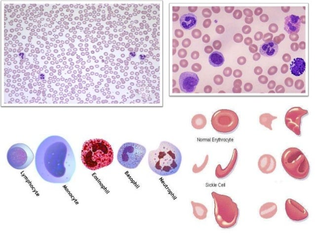 blood smear essay Strong essays 642 words (18 pages) cervical cancer: the best form of prevention is to be informed and aware - cervical cancer is the second most common cancer among women and the leading cause of death among women in underdeveloped countries.
