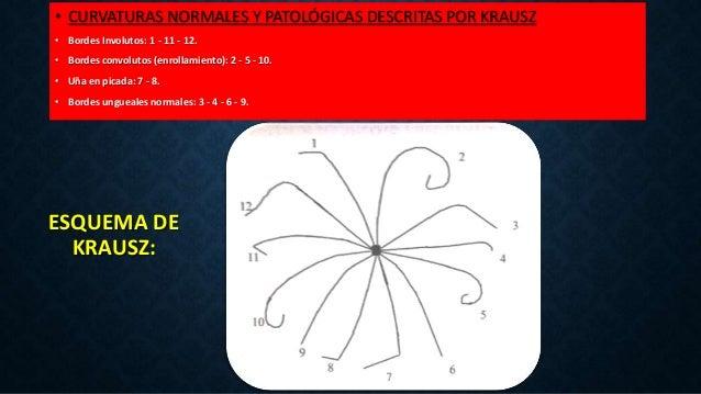 ESQUEMA DE KRAUSZ: • CURVATURAS NORMALES Y PATOLÓGICAS DESCRITAS POR KRAUSZ • Bordes Involutos: 1 - 11 - 12. • Bordes conv...