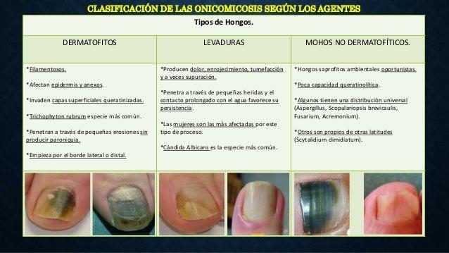 OMSDL: ONICODISTROFIA SUBUNGUEAL DISTAL Y LATERAL Patrón más frecuente. La infección se inicia en el borde libre de la uña...