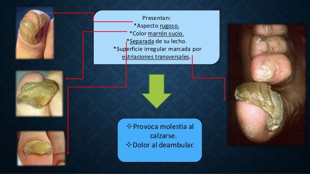Patologías Ungueales: Onicocriptosis, Onicomicosis y Onicogrifosis.