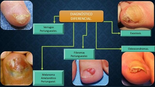 DIAGNÓSTICO DIFERENCIAL. Verrugas Periungueales. Melanoma Amelanótico Periungueal. Fibromas Periungueales. Osteocondromas....