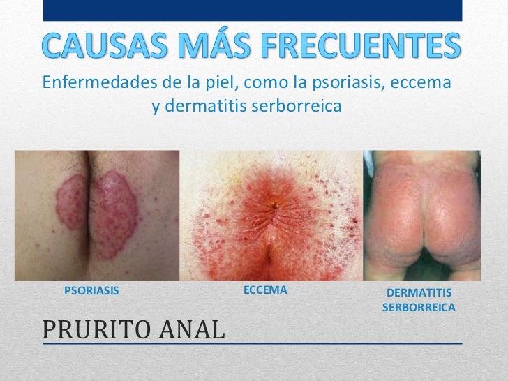 Como curar la psoriasis por el ajo