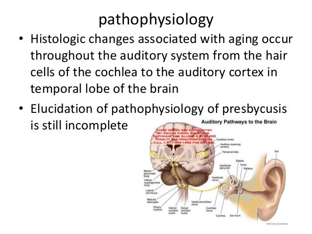 Presbycusis Deafness Of Old Age