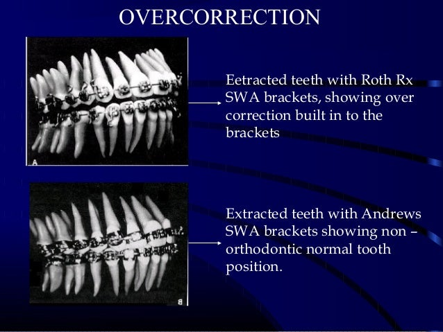 OVERCORRECTION Eetracted teeth with Roth Rx SWA brackets, showing over correction built in to the brackets Extracted teeth...