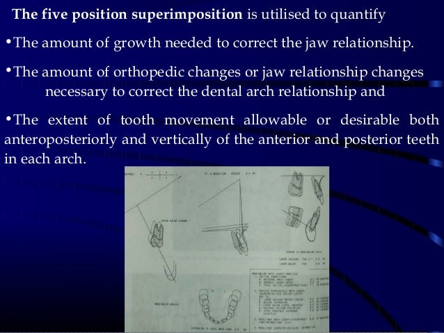 The five position superimposition is utilised to quantify •The amount of growth needed to correct the jaw relationship. ...