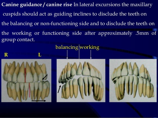 Canine guidance / canine rise In lateral excursions the maxillary cuspids should act as guiding inclines to disclude the t...