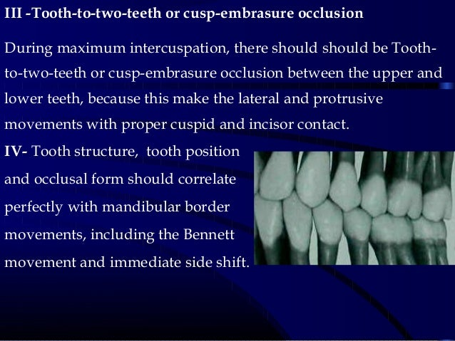 III -Tooth-to-two-teeth or cusp-embrasure occlusion During maximum intercuspation, there should should be Tooth- to-two-te...