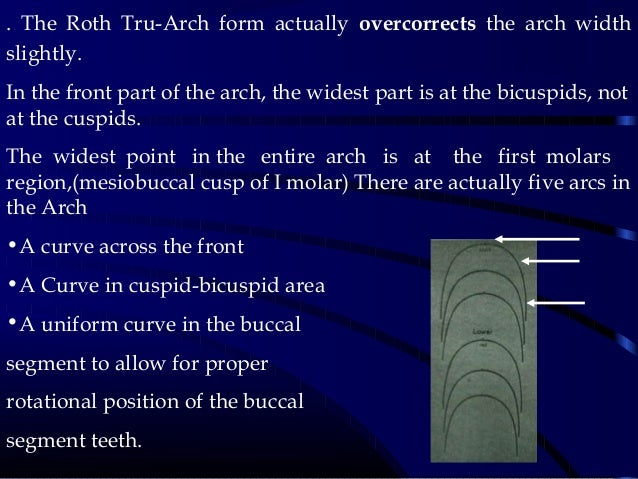 . The Roth Tru-Arch form actually overcorrects the arch width slightly. In the front part of the arch, the widest part is ...