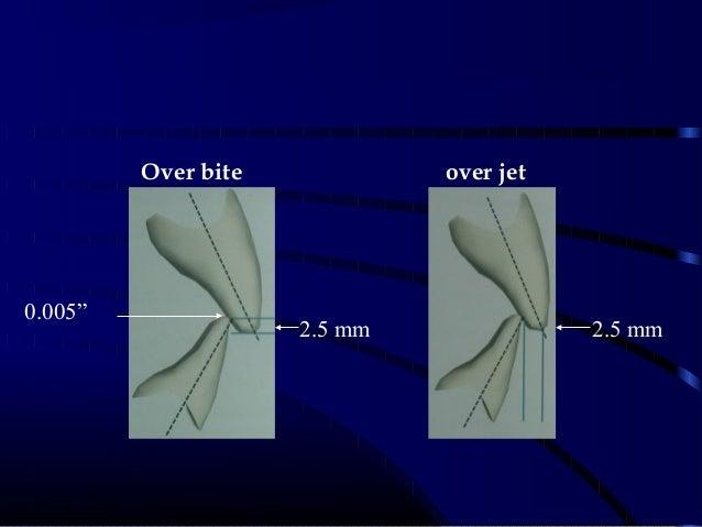 """over jetOver bite 2.5mm 2.5mm 0.005"""""""