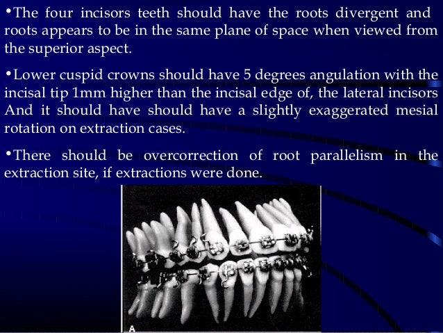•The four incisors teeth should have the roots divergent and roots appears to be in the same plane of space when viewed fr...