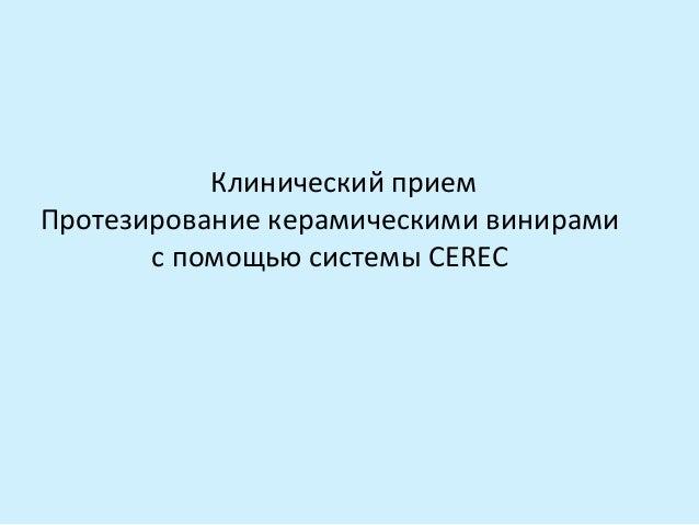 Клинический прием Протезирование керамическими винирами с помощью системы CEREC