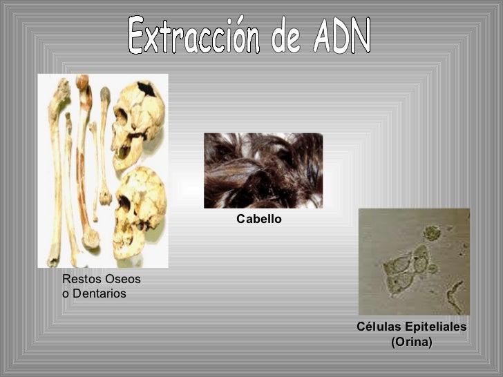 Restos Oseos o Dentarios Cabello Células Epiteliales (Orina) Extracción de ADN