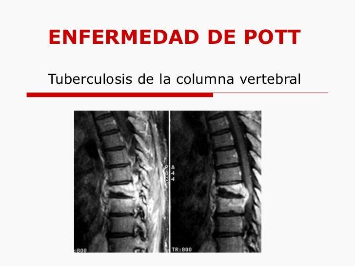 ENFERMEDAD DE POTT Tuberculosis de la columna vertebral