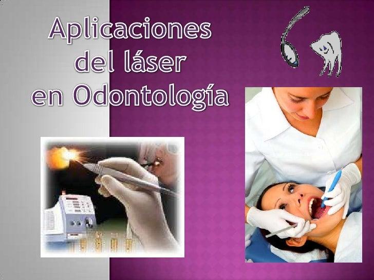 Aplicaciones <br />del láser <br />en Odontología<br />